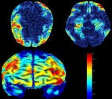 brain scan images from psychology today's David Hellerstein, M.D., article titled Heal Your Brain