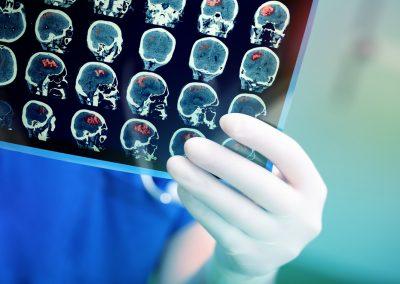 Neuroscience of Impulse and Addiction