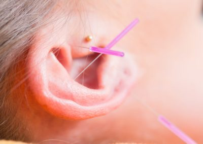 Can Acupuncture Assist in Drug Abuse Treatment